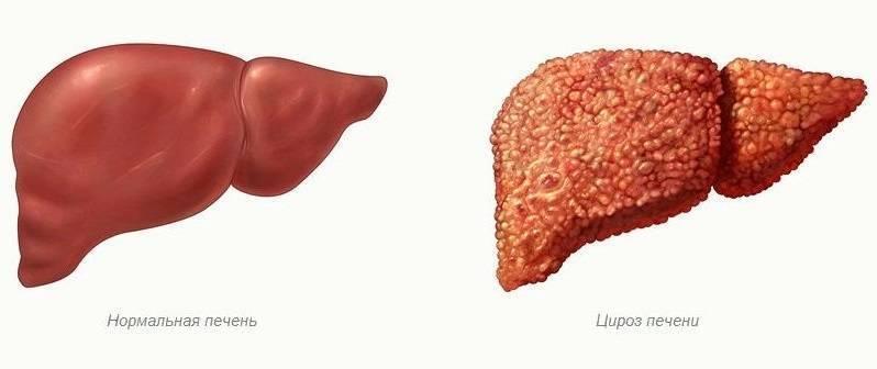 Алкогольный гепатит: диагностика, симптомы, лечение. как распознать гепатит алкогольного генеза