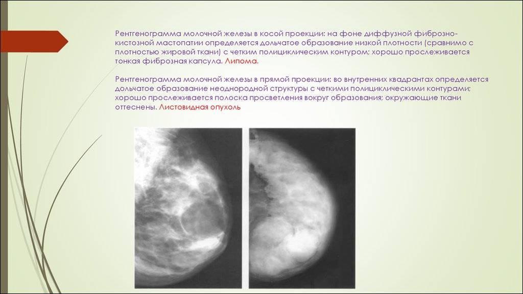 Мастопатия с преобладанием фиброзного компонента