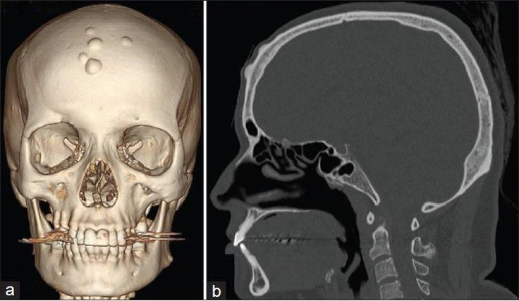 Причины возникновения, симптомы и методы лечения остеомы лобной кости