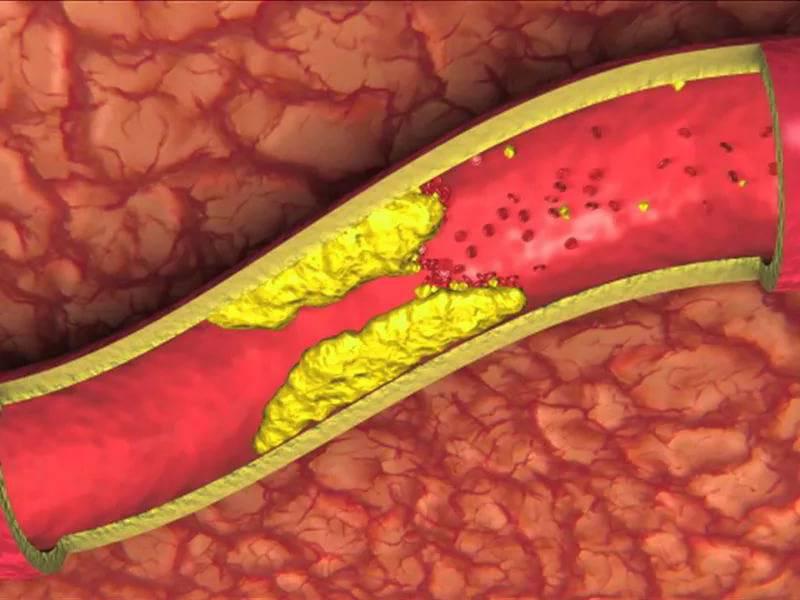 Обзор методов очищения сосудов от холестерина и тромбов