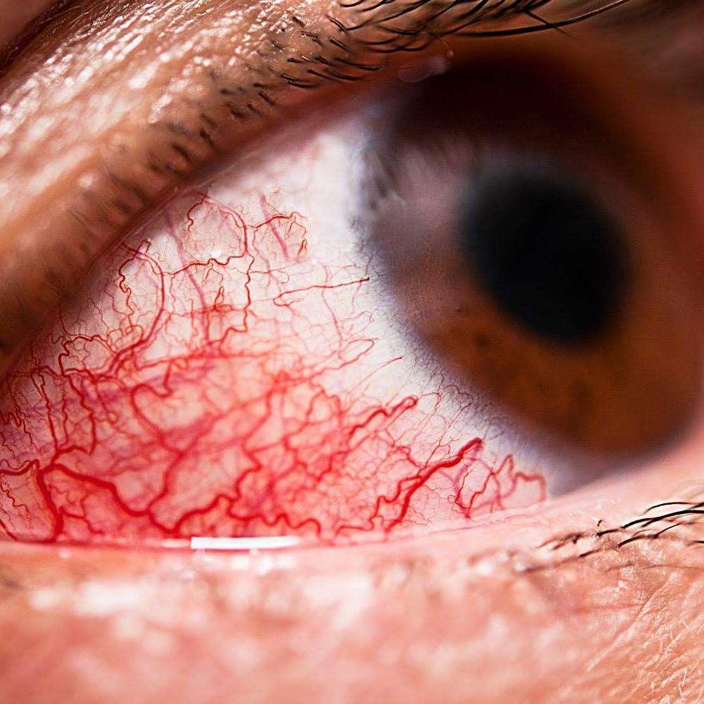 грибковые поражения глаз