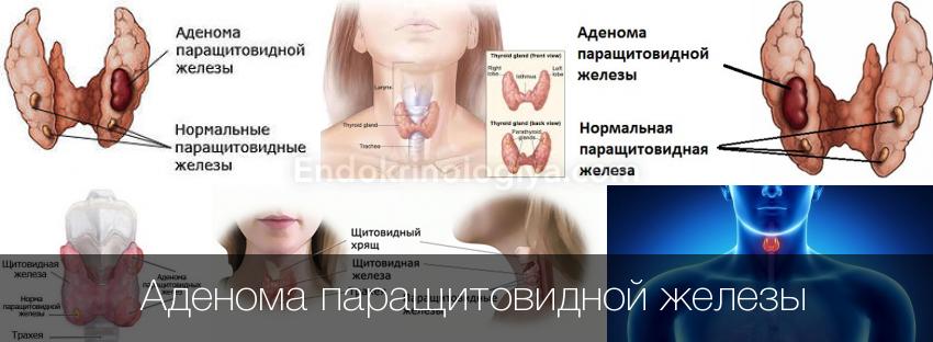 Гиперплазия - увеличение паращитовидной железы