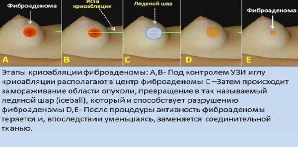 Фиброаденома молочной железы: лечение без операции. препараты и народные средства