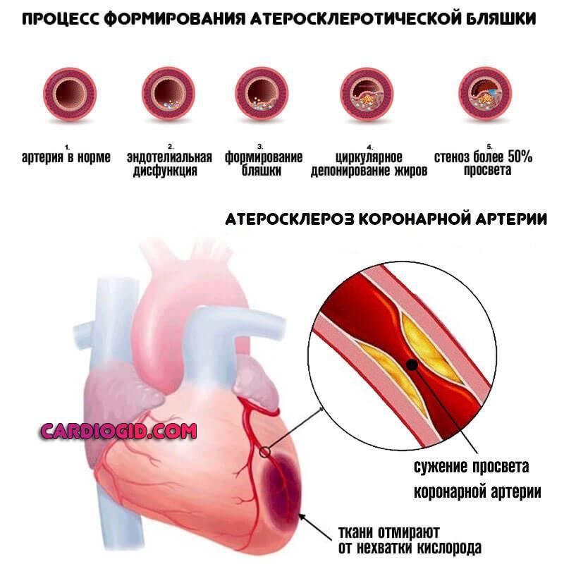 Атеросклероз аорты коронарных артерий: причины, симптомы и стадии