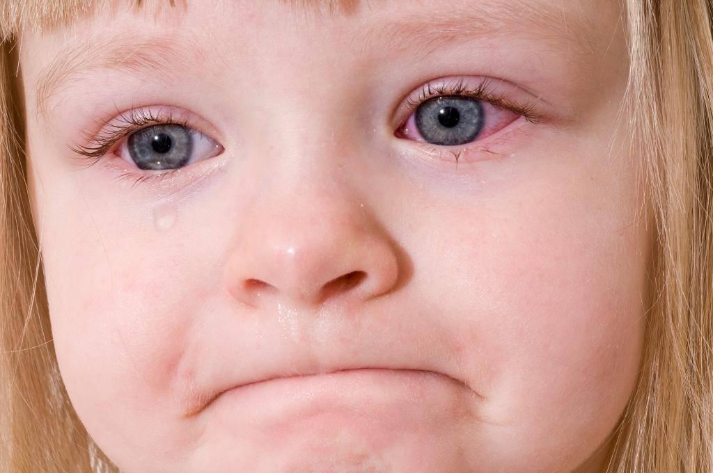 аллергический конъюнктивит у ребенка