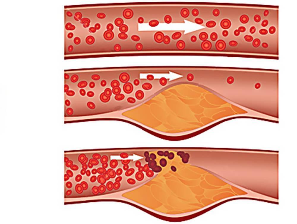 Семейная гиперхолестеринемия: причины заболевания, основные симптомы, лечение и профилактика