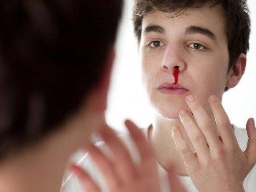 Причины крови из носа у подростка