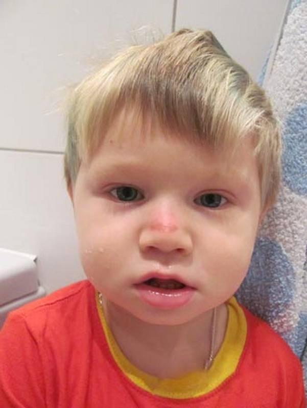 Признаки и лечение перелома носа у ребенка