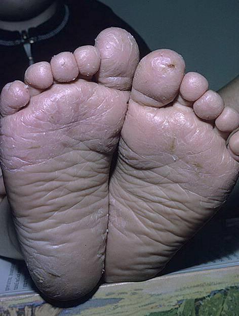 Пустулезный псориаз подошв и ладоней: различные формы барбера, симптомы и лечение