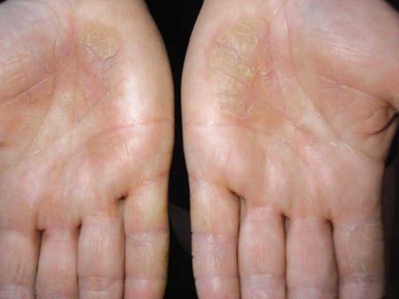 псориаз на ладонях рук лечение