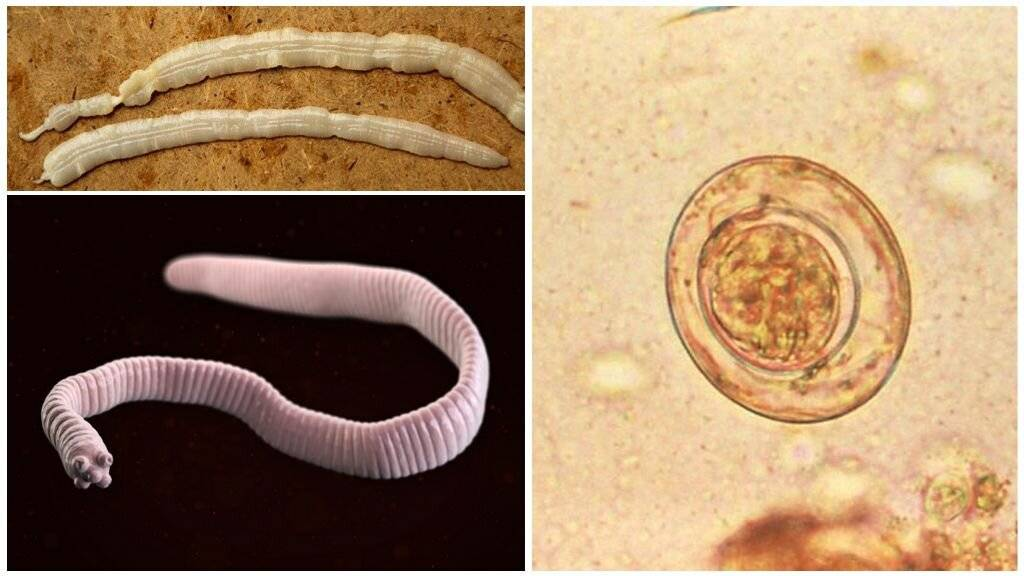 Класс ленточные черви. строение на примере бычьего цепня. способы заражения и профилактика