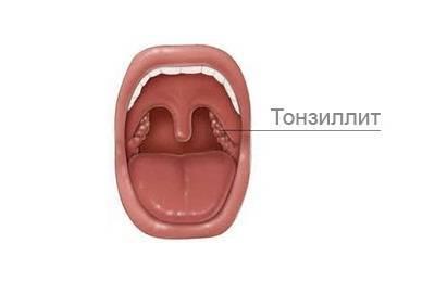 хронический тонзиллит антибиотики