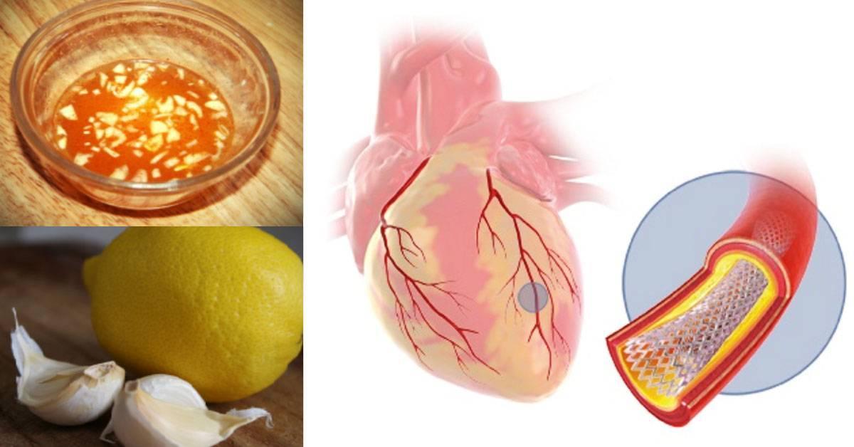 Как очистить сосуды от холестерина?