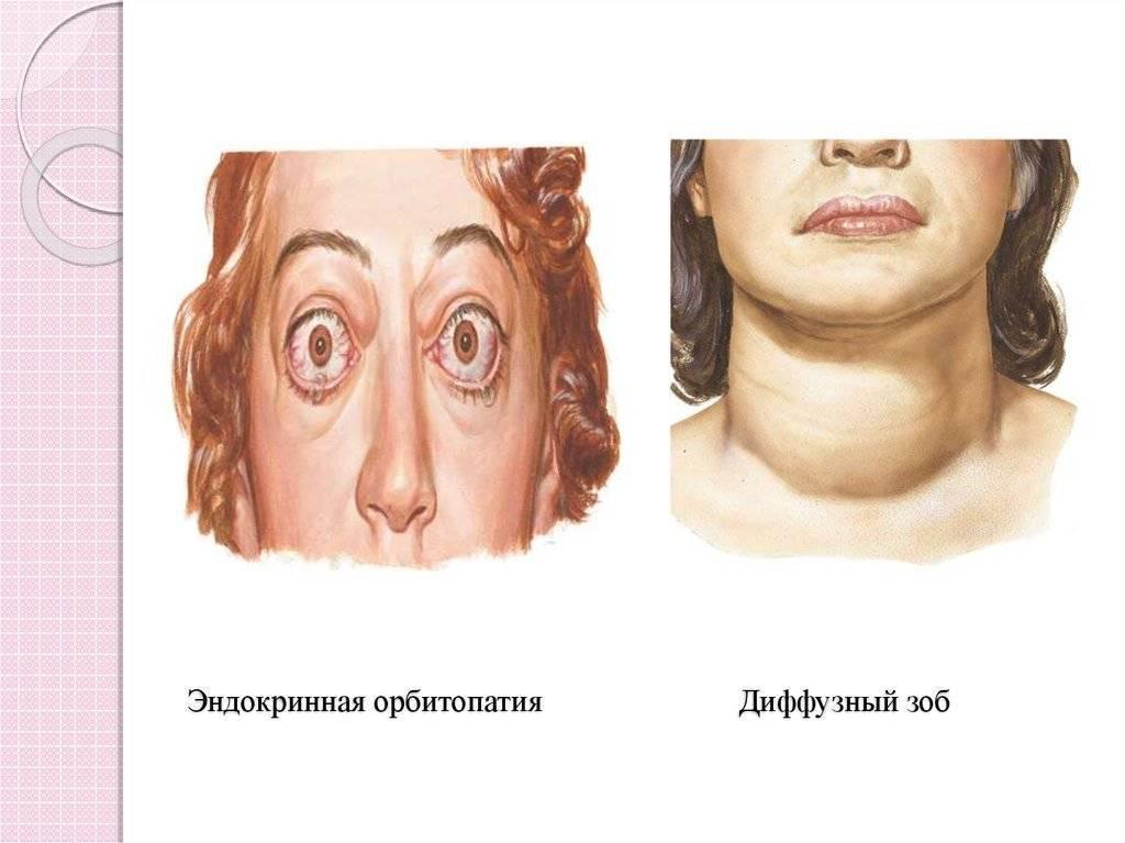 Увеличена щитовидка у ребенка 7 лет:
