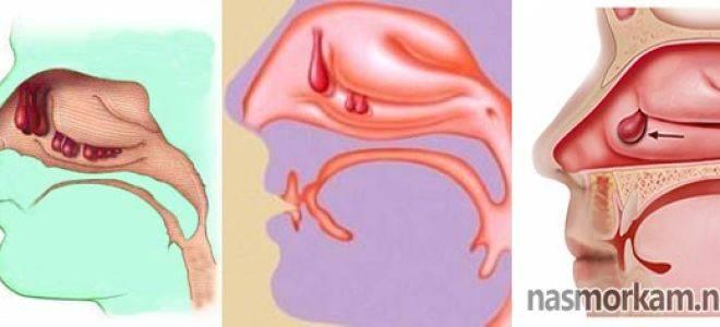чем снять отечность носа