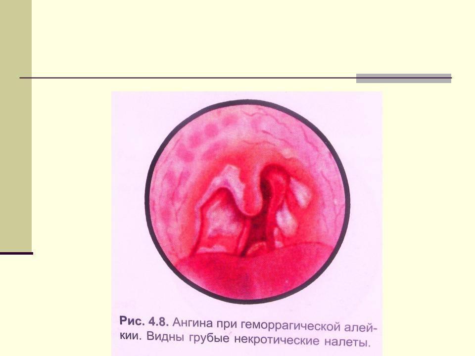 Лакунарная ангина — описание, лечение, симптомы
