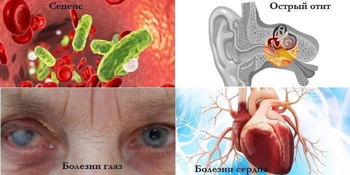 Последствия гайморита и осложнения недолеченного заболевания у взрослых