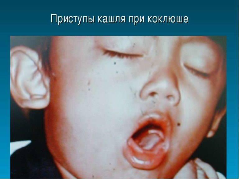 Что делать, когда возникает кашель со свистом. кашель со свистом у взрослых: причины свистящего кашля