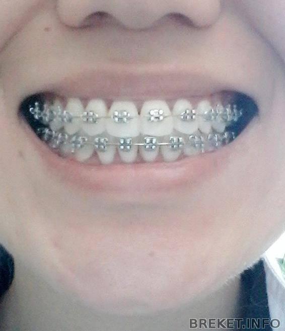 Брекеты на 2 челюсти: обязательно ли ставить на обе, расширение, почему не ставят на последние задние зубы, до и после исправления