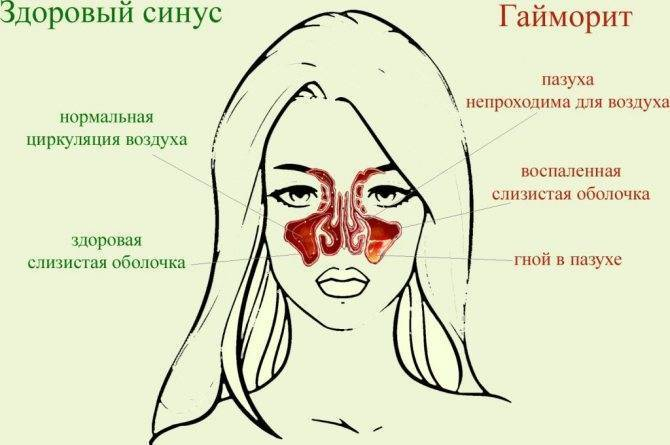 Гайморит: симптомы и лечение у взрослых и детей. причины и первые признаки
