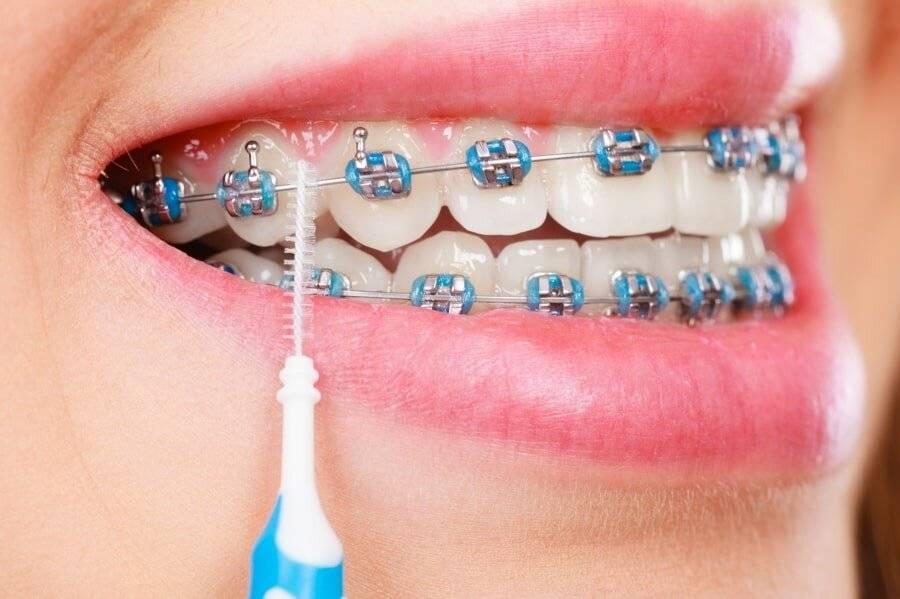 как ухаживать за брекетами и зубами