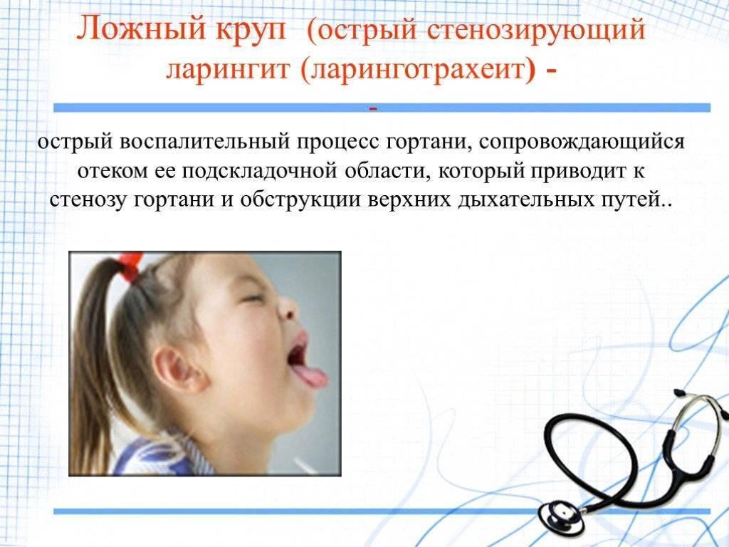 Ложный круп у детей – как определить и вылечить заболевание?