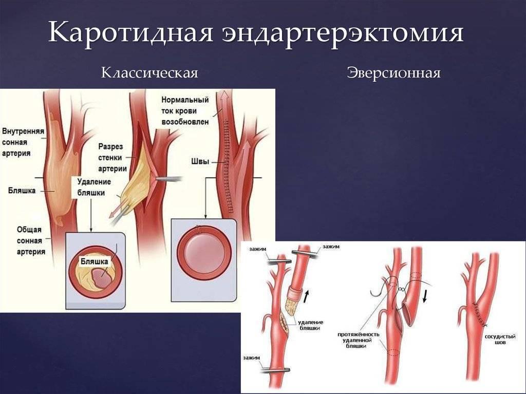 Для чего нужна операция на сонной артерии. виды, возможные осложнения и реабилитация
