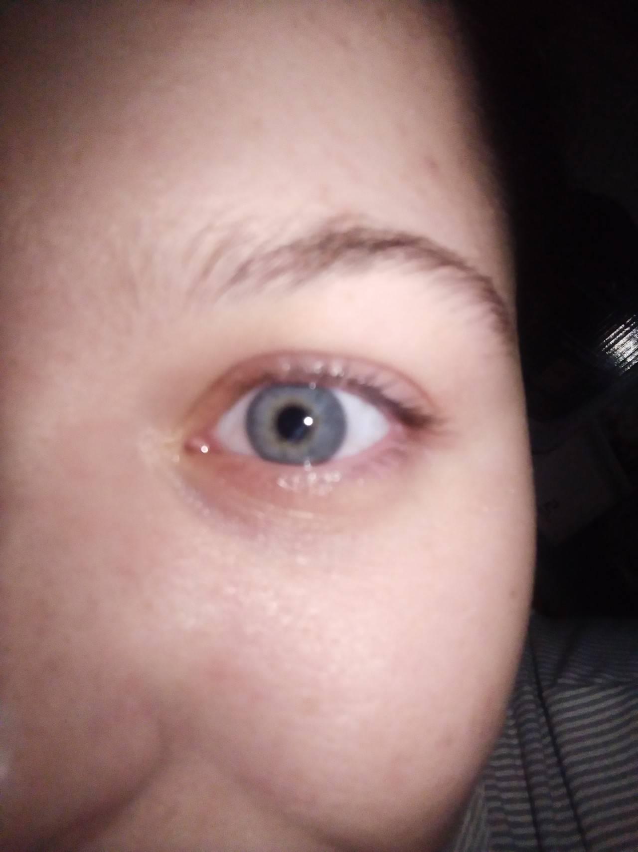 чешется в уголках глаз