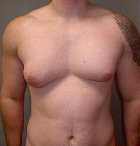 Лечение диффузной мастопатии народными средствами