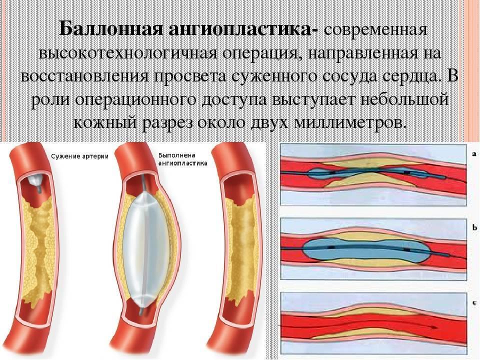 Ангиопластика баллонная со стентированием и без: показания, виды, проведение, реабилитация
