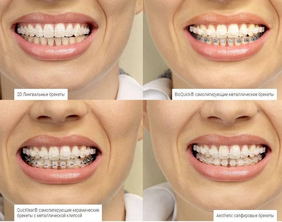 Сапфировые или керамические брекеты — отличия зубных конструкций