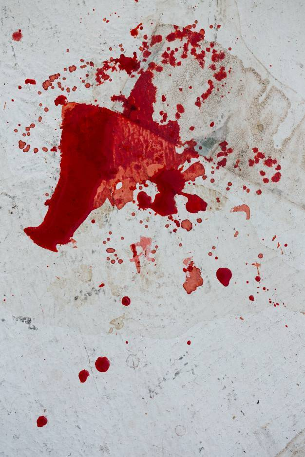 кровь из носа ночью причины