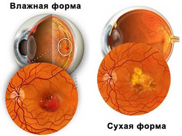 влажная макулодистрофия сетчатки глаза лечение