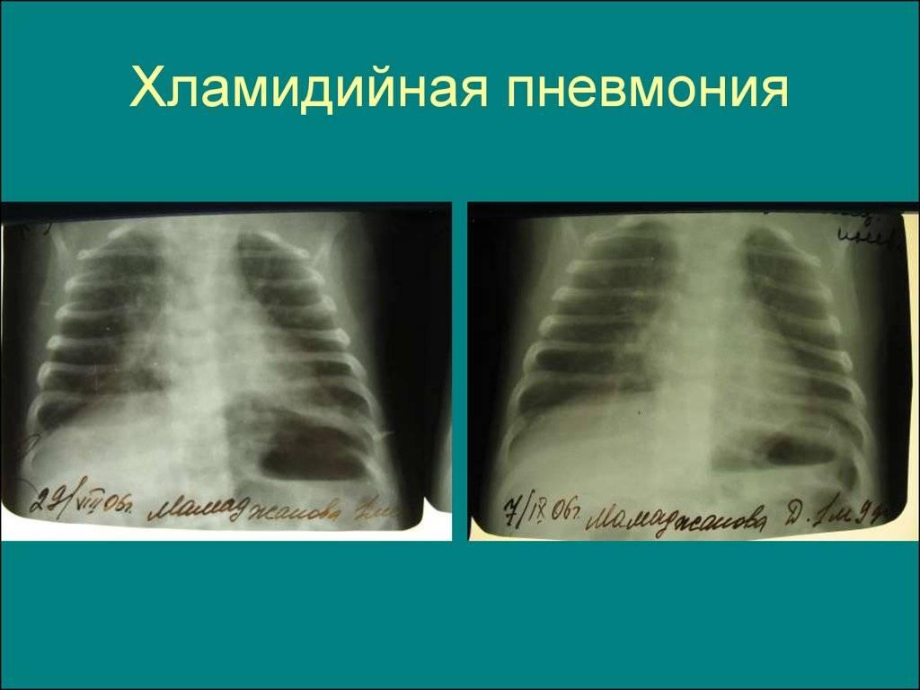 Что такое хламидия пневмония?