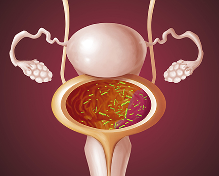 Какие бактерии вызывают цистит