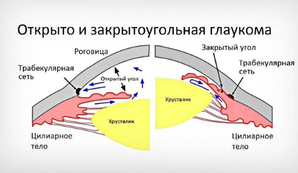 Коварная болезнь! что необычного в открытоугольной глаукоме?