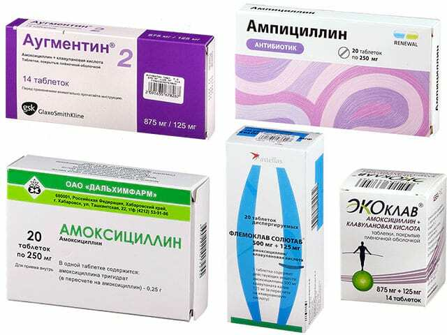 фолликулярная ангина лечение какие антибиотики