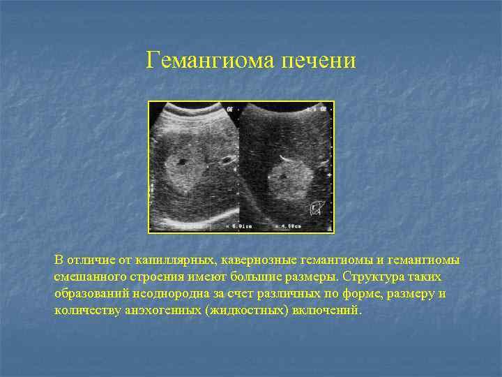 лечение гемангиомы печени народными средствами