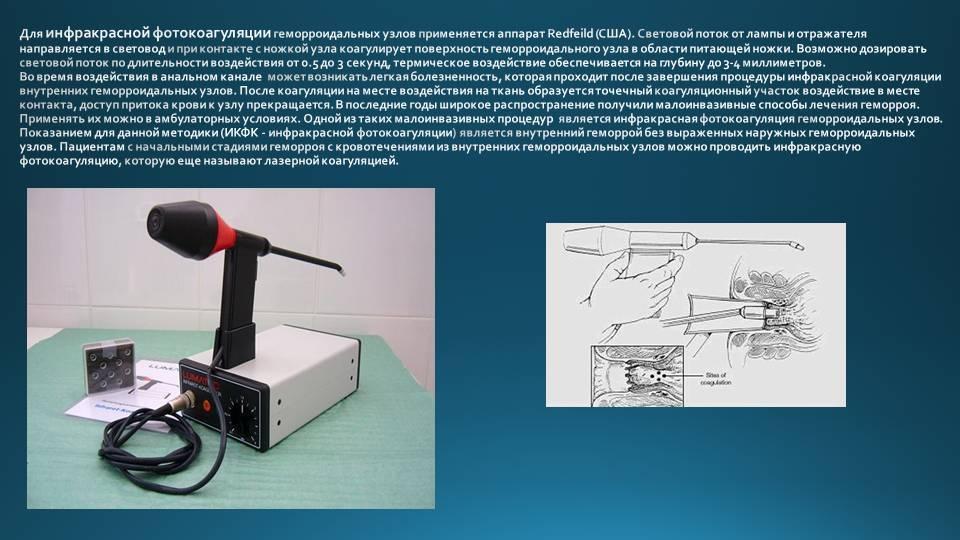 Лазерная вапоризация геморроидальных узлов