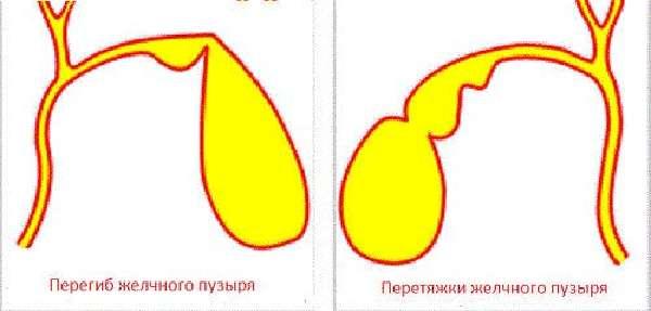 Лечение перегиба желчного пузыря