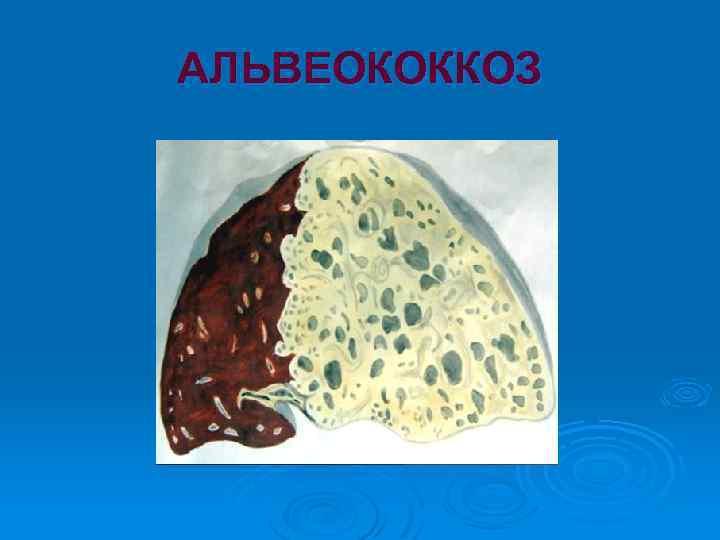 альвеококкоз симптомы у человека