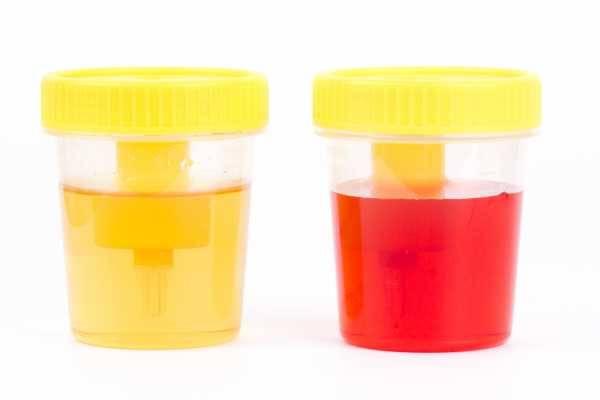 Цистит с кровью - причины появления, диагностика, лечение медикаментозными и народными средствами, диетой