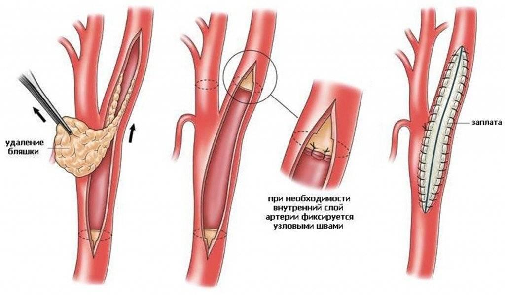 удаление холестериновых бляшек лазером