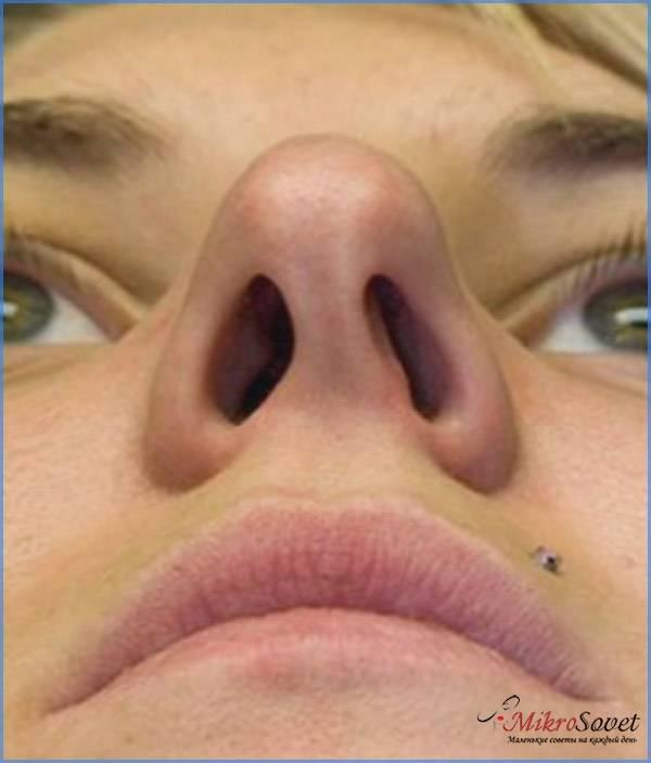 Искривление носовой перегородки – лечение