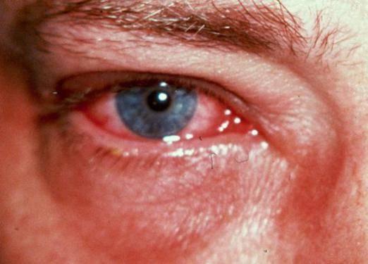 что делать при попадании щелочи в глаза
