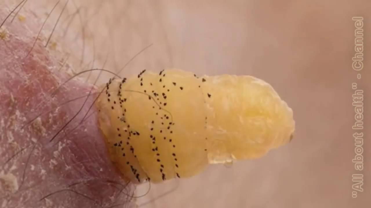 Кожный миаз: причины возникновения, симптомы и лечение | все о паразитах