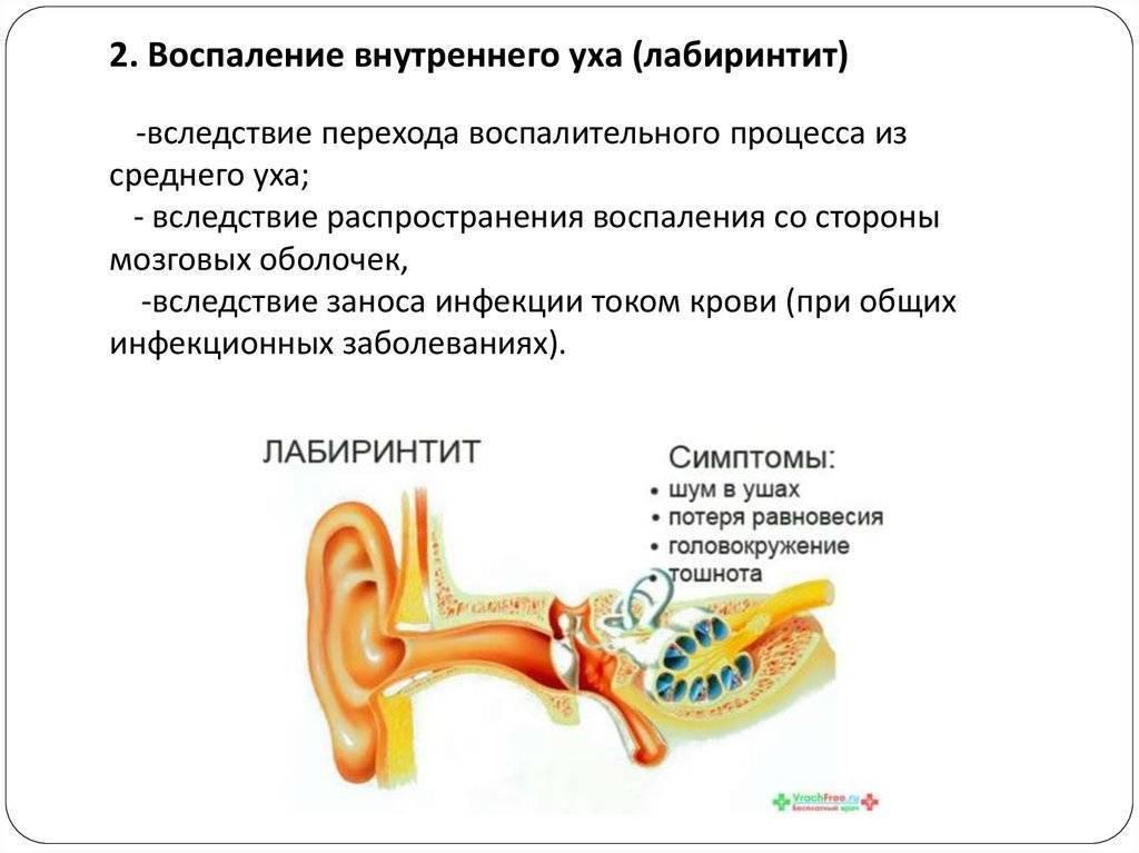 отит внутреннего уха