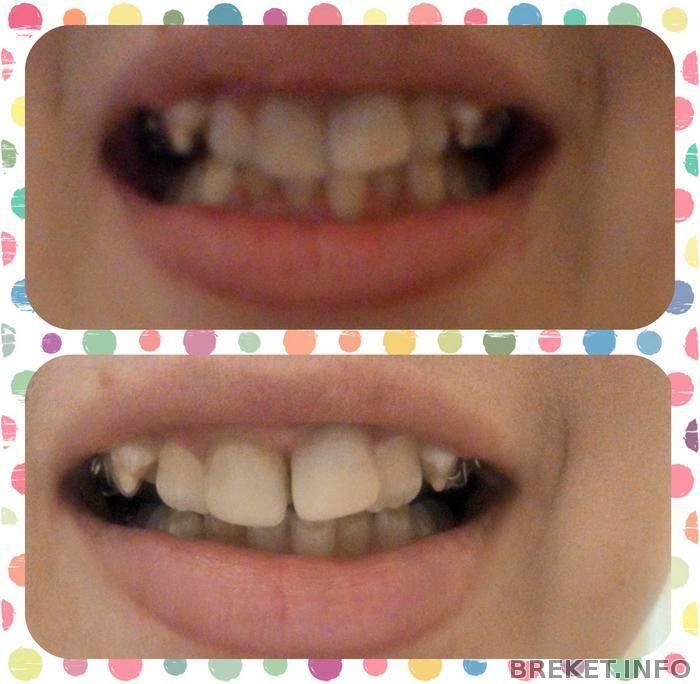 Что лучше зубная пластика или брекеты для детей