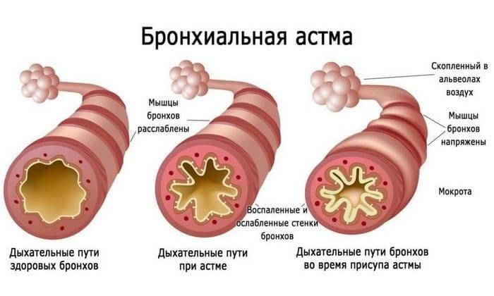 дерматит астма