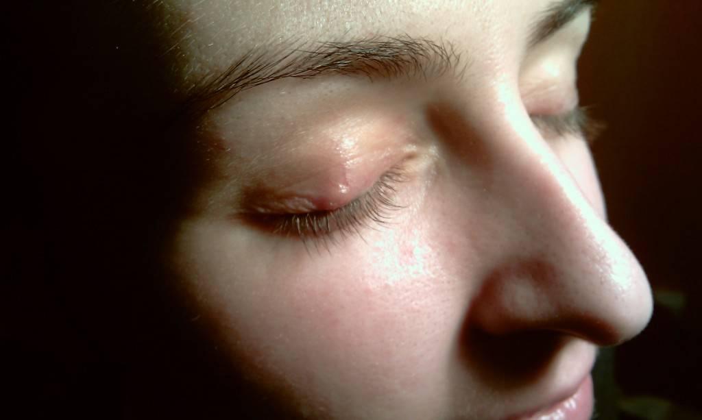 Что такое халязион на глазу и возможно ли его лечение без операции?